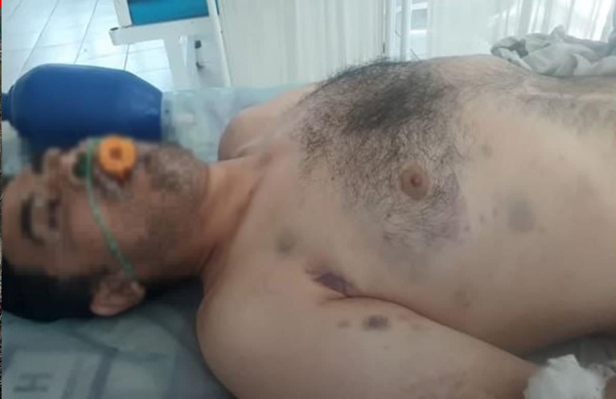 В Сурхандарье скончался мужчина после избиения сотрудниками ОВД