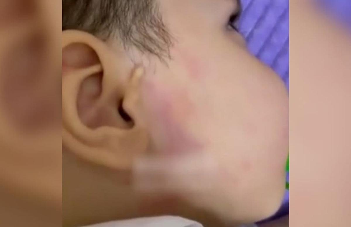 В ОВД прокомментировали избиение годовалого ребёнка в самаркандском детсаду «Мечта»