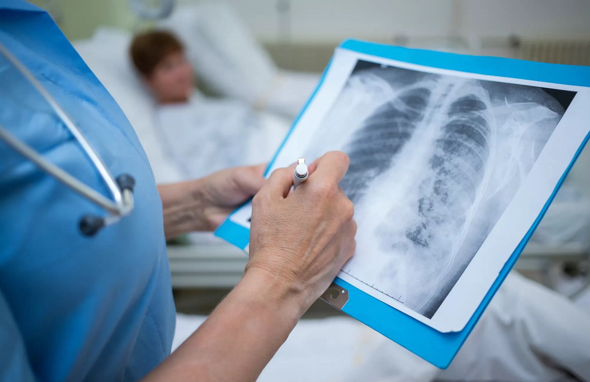 За последние сутки выявили 334 новых случая пневмонии — статистика