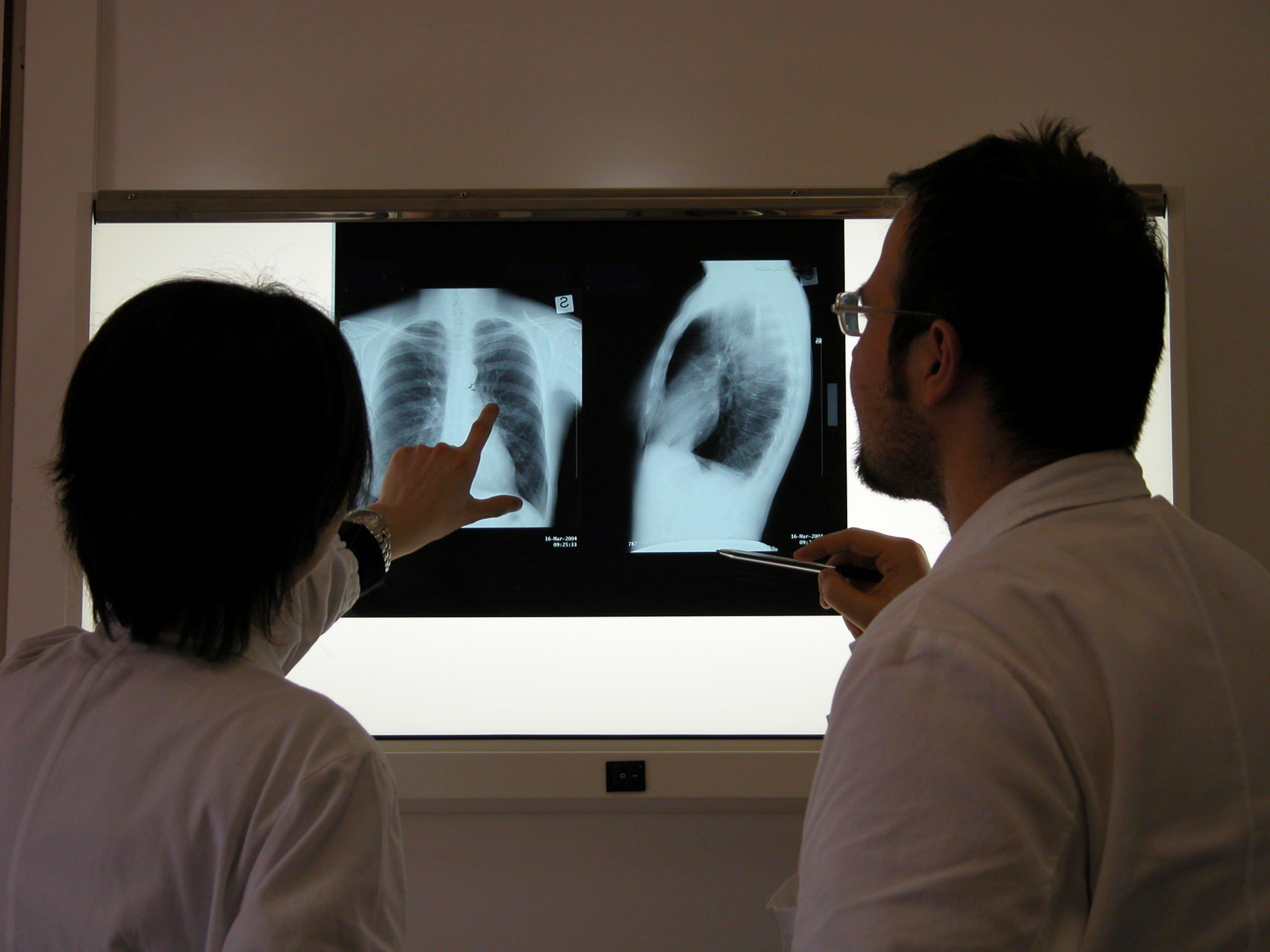 Минздрав опубликовал статистику по заболеваемости пневмонией